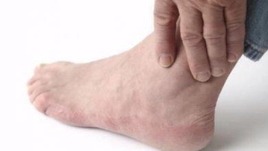 Photo of Gut Hastalığının Belirtileri