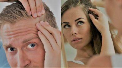 Photo of Saç Dökülmesi Nedenleri