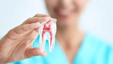 Photo of Diş Çürümesinin Farklı Sebepleri Nelerdir?