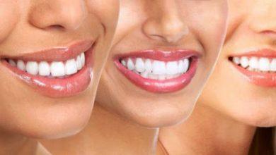 Photo of Bembeyaz Dişler İçin Altın Öneriler