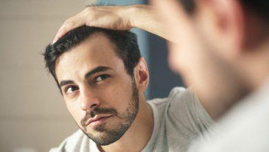 Photo of Saç Dökülmesinin Sebepleri ve Tedavi Aşamaları